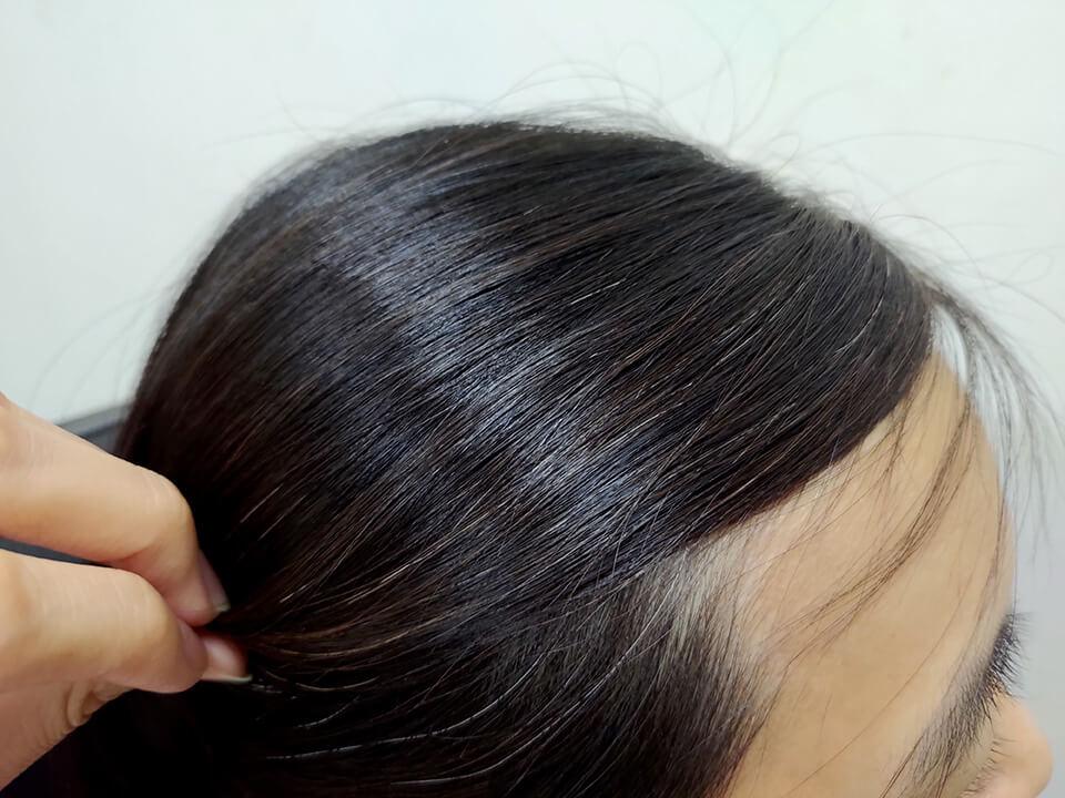 使用噴噴黑的第六天-天然染髮推薦