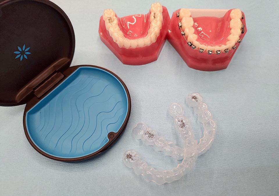 彰化隱適美矯正牙齒